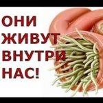 Паразити внутри нас: правда о червях, живущих в человеке, фото