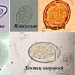 Анализы на энтеробиоз и яйцеглист