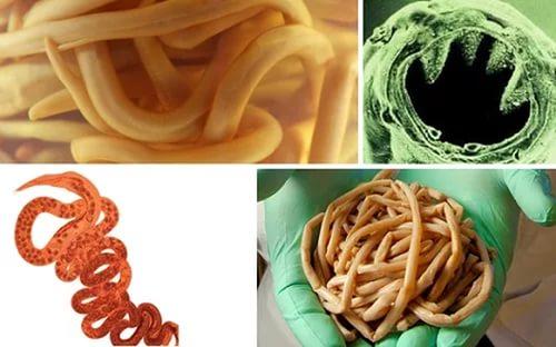 тройчатка от паразитов для детей