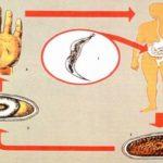 Способы заражения глистами