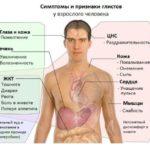 Красние глисти у человека: фото, симптоми гельминтов в организме