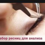 исследование ресниц на демодекоз