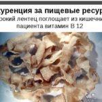 Черви в организме человека: какие глисти живут в теле, фото и лечение