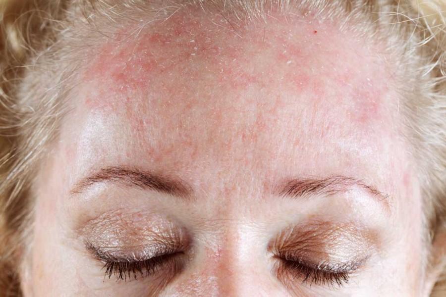 таких видов после диатеза кожа стала шершавой и сухой главная