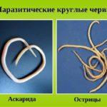 аскариды и острицы