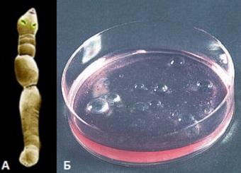 противопаразитарное очищение организма содой