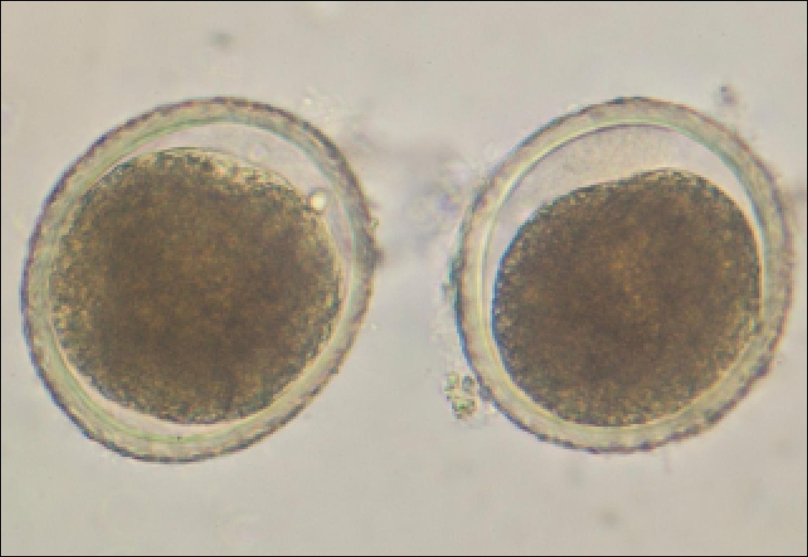 паразиты в животе человека фото