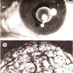Цистицерки: а - глаз; б - мозг