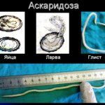 диагностика аскаридоза