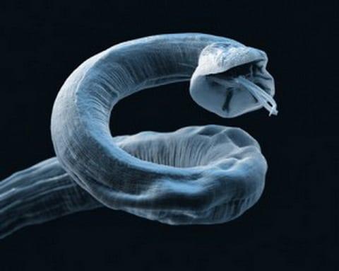 паразиты на почках человека