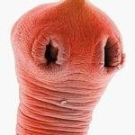 Описторхи: что ето такое, симптоми и фото, лечение и как виглядят паразити