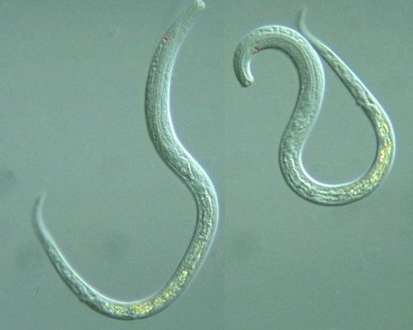 паразиты в кале человека лечение