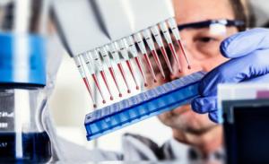Как диагностируют паразитов в организме человека - симптомы, методы и какие анализы нужно сдавать