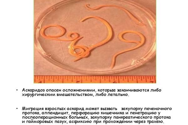 Аскариды и гельминты разница