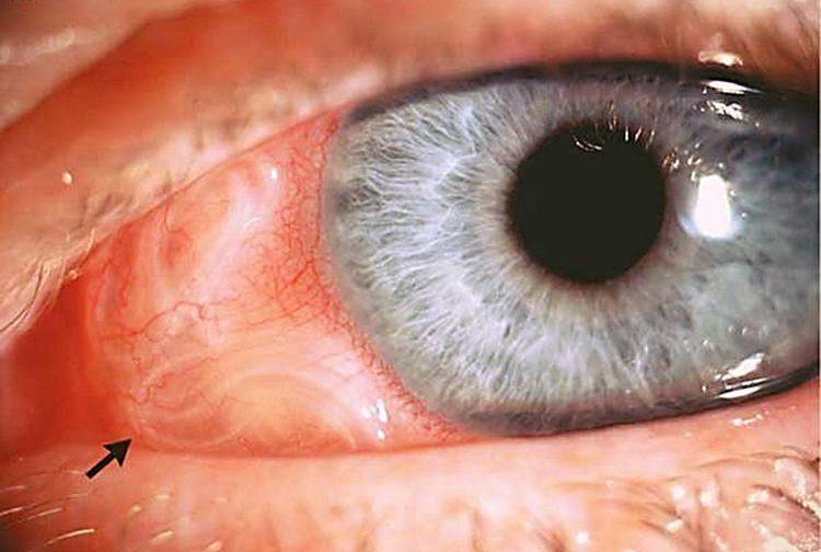 Паразиты в глазах человека симптомы и лечение в домашних условиях
